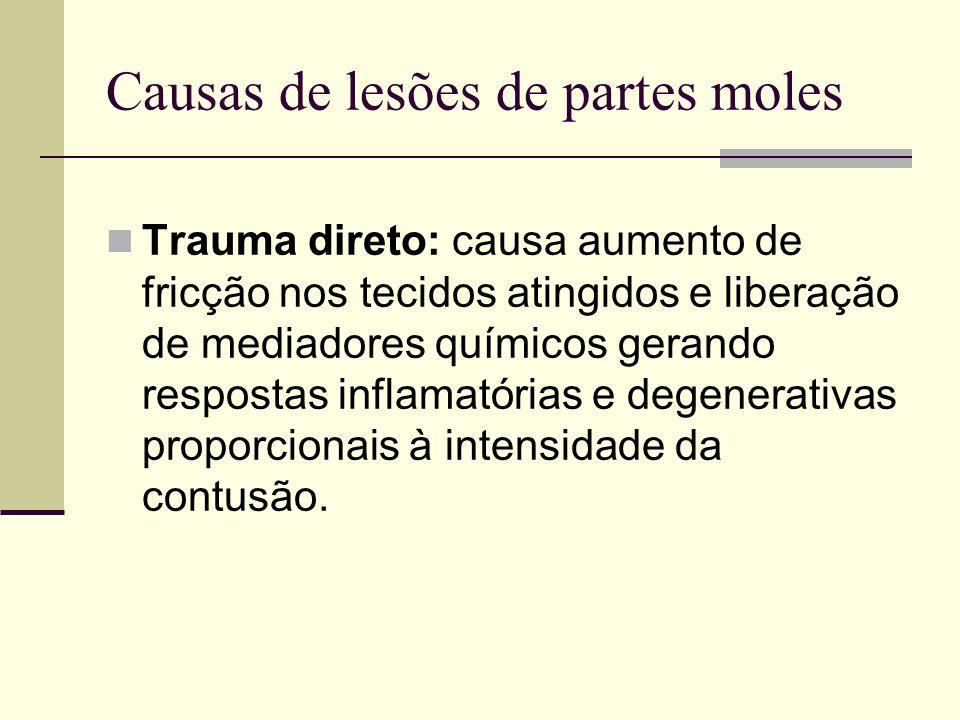 Causas de lesões de partes moles