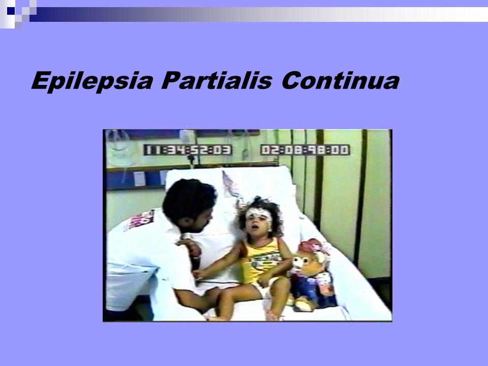 Epilepsia Partialis Continua
