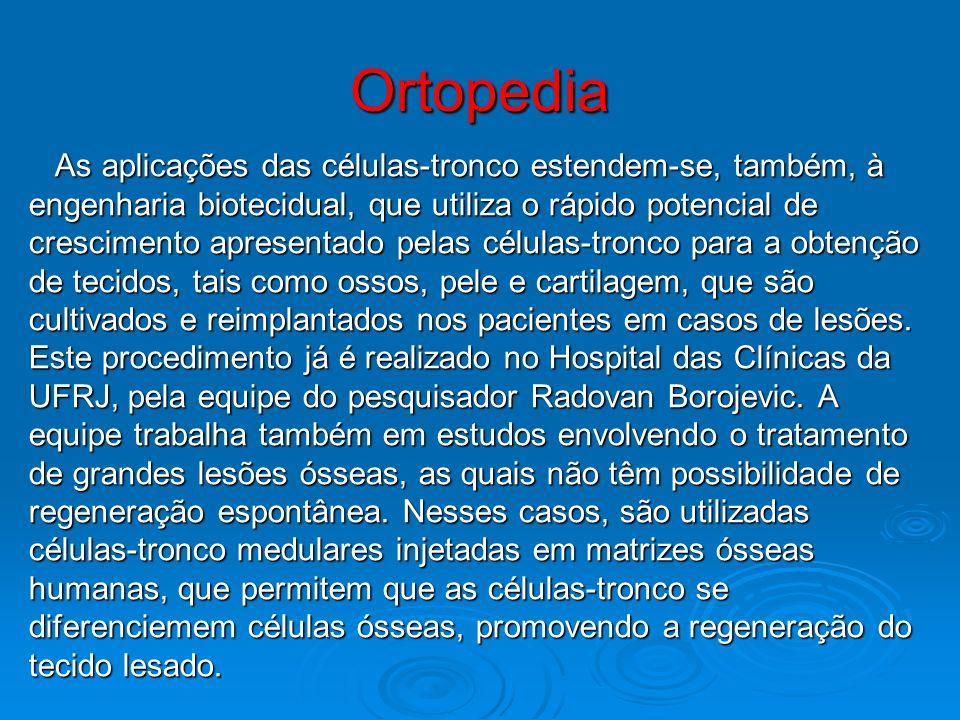 Ortopedia As aplicações das células-tronco estendem-se, também, à