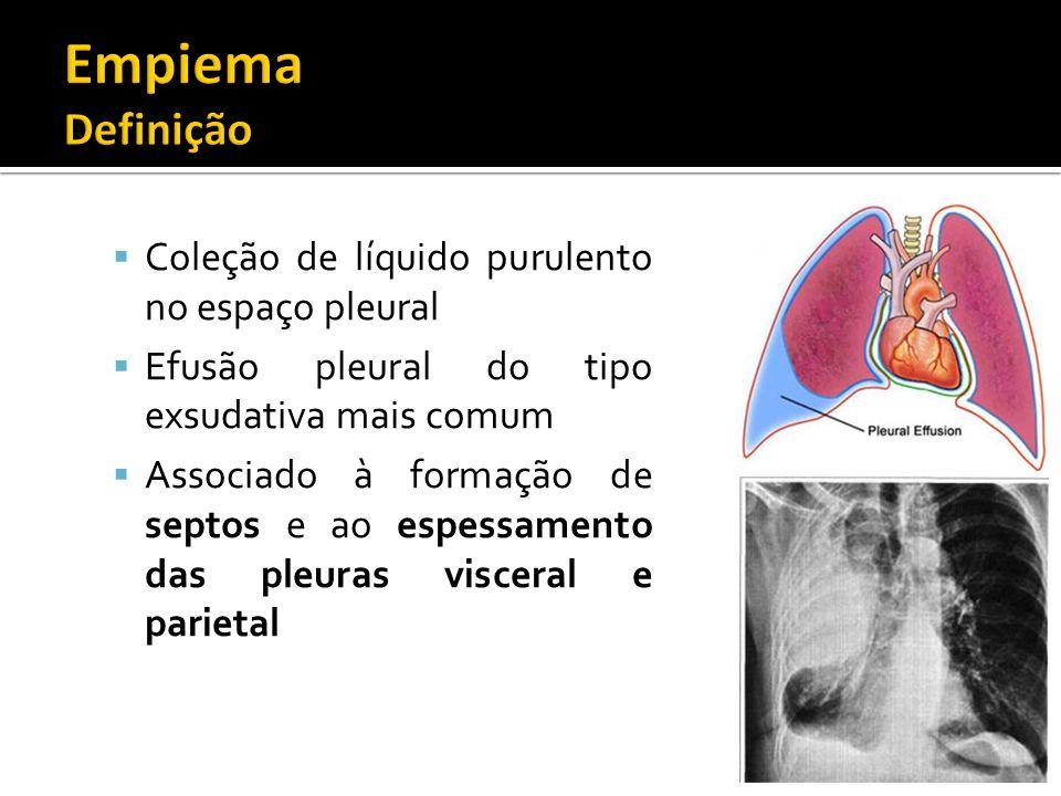 Empiema Definição Coleção de líquido purulento no espaço pleural