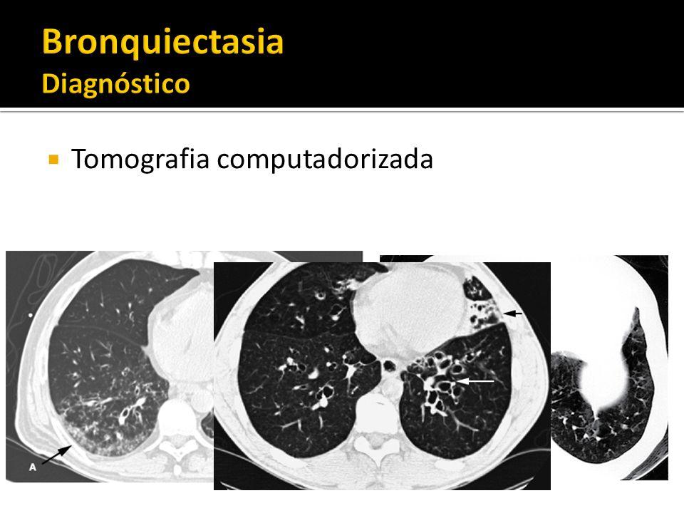 Bronquiectasia Diagnóstico