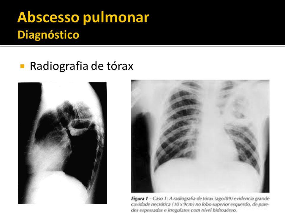 Abscesso pulmonar Diagnóstico