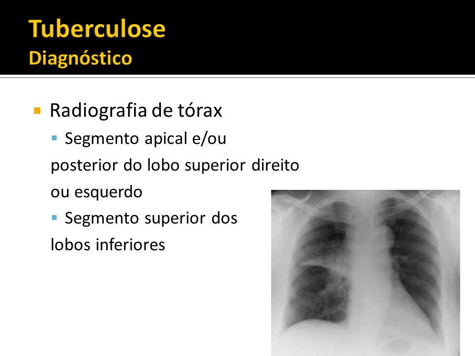 Tuberculose Diagnóstico