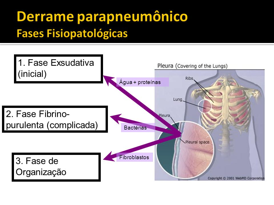 Derrame parapneumônico Fases Fisiopatológicas