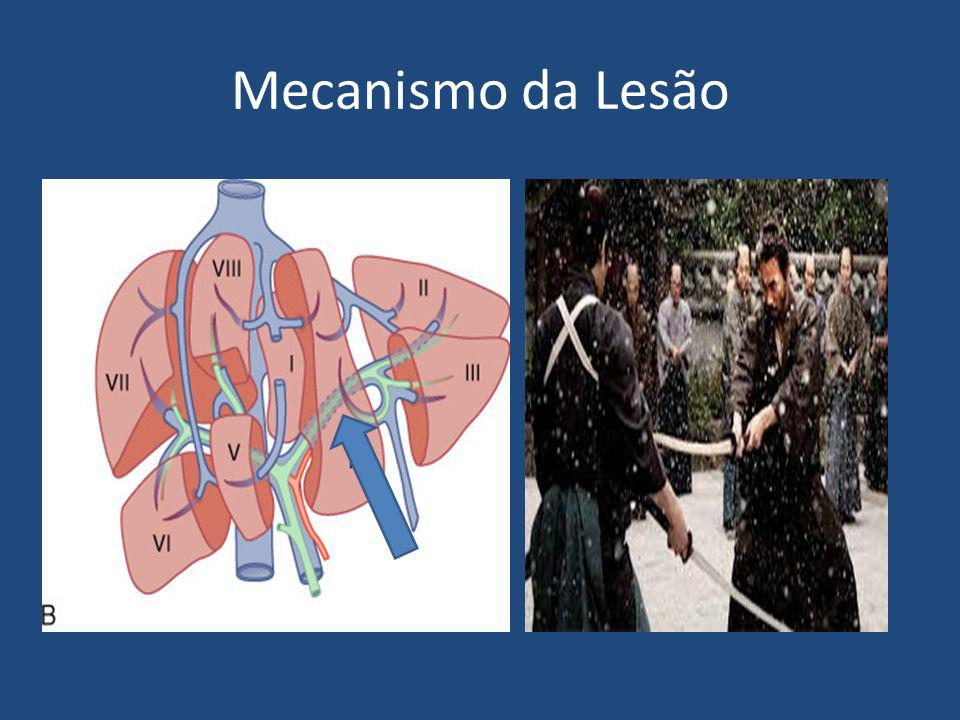 Mecanismo da Lesão