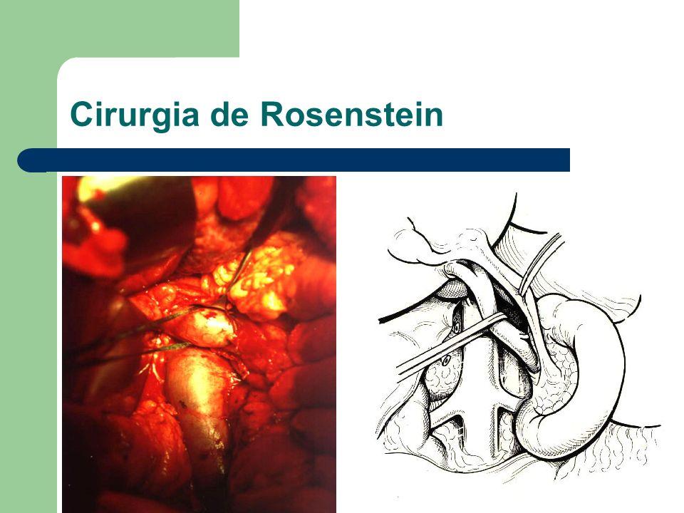 Cirurgia de Rosenstein