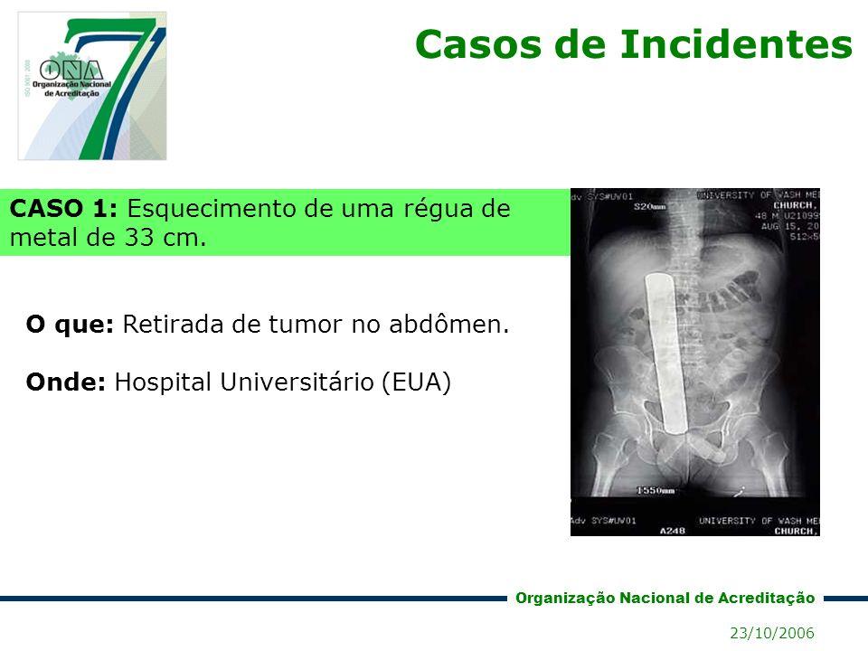 Casos de Incidentes CASO 1: Esquecimento de uma régua de metal de 33 cm. O que: Retirada de tumor no abdômen.