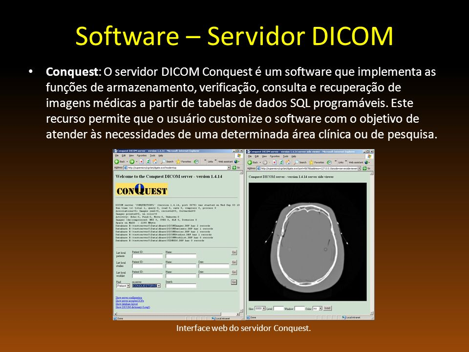 Software – Servidor DICOM