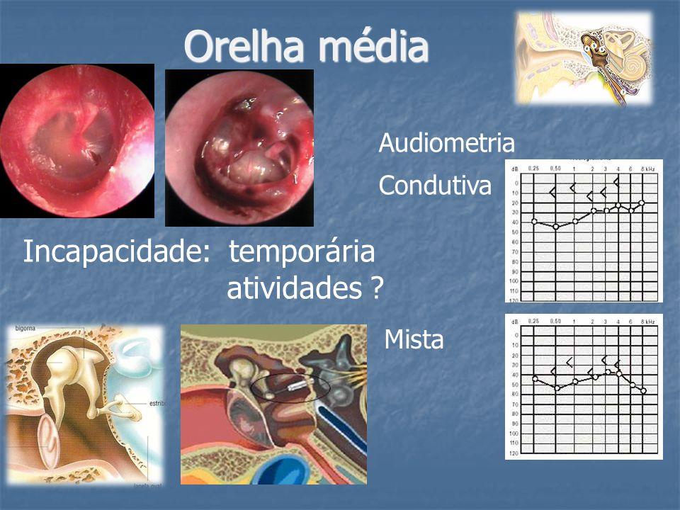 Orelha média Incapacidade: temporária atividades Audiometria