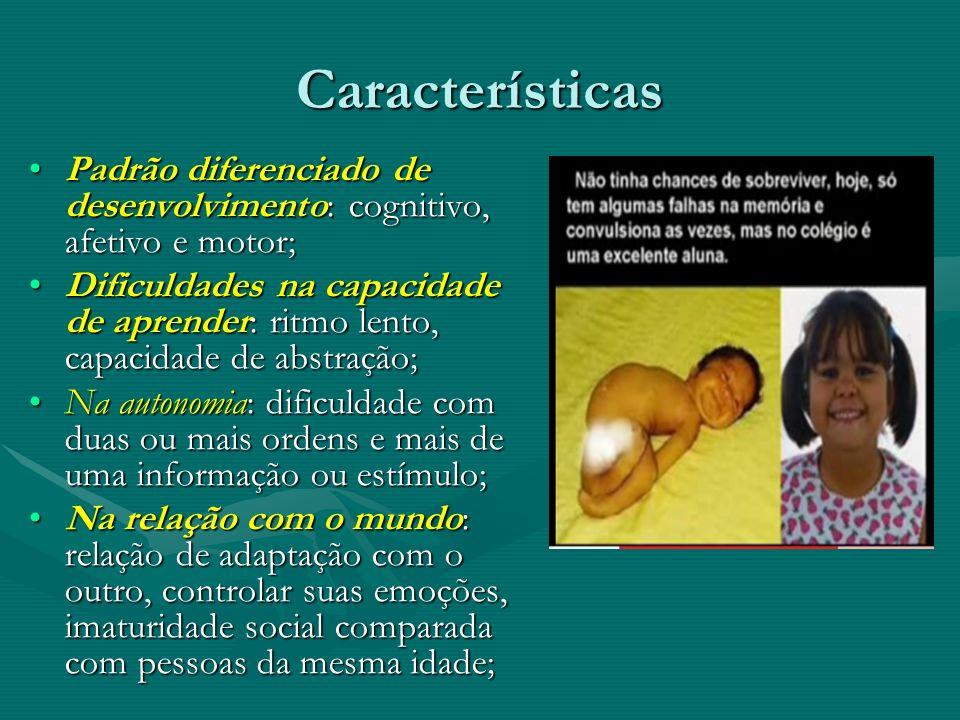 Características Padrão diferenciado de desenvolvimento: cognitivo, afetivo e motor;
