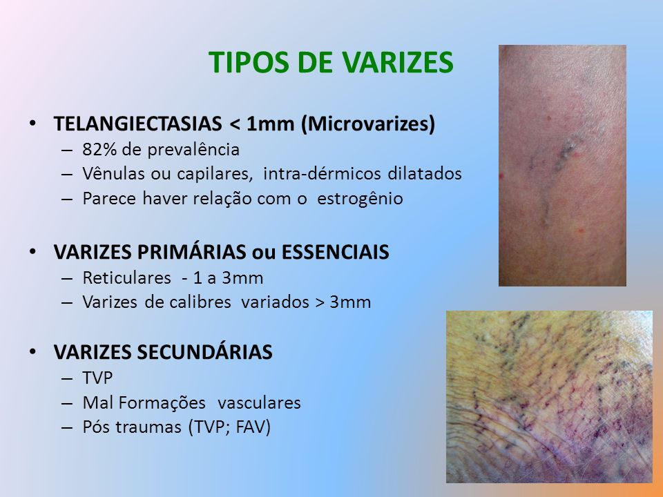TIPOS DE VARIZES TELANGIECTASIAS < 1mm (Microvarizes)