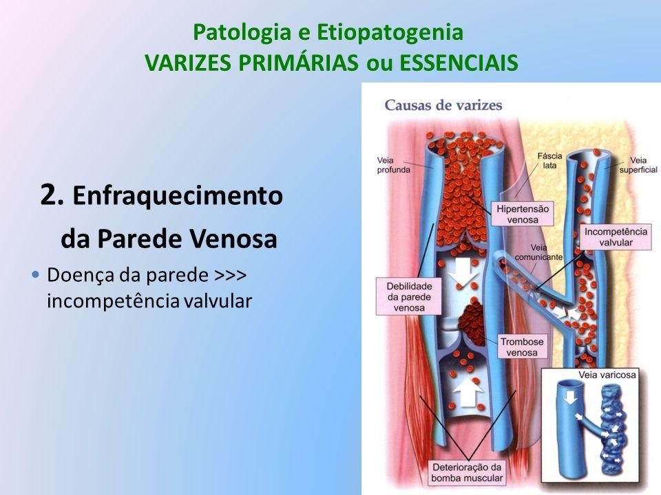 Patologia e Etiopatogenia VARIZES PRIMÁRIAS ou ESSENCIAIS