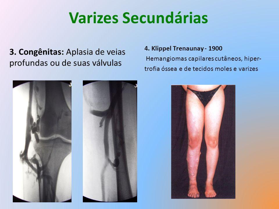 Varizes Secundárias 4. Klippel Trenaunay - 1900. Hemangiomas capilares cutâneos, hiper- trofia óssea e de tecidos moles e varizes.