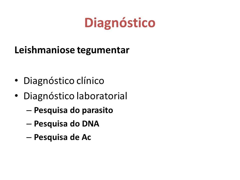 Diagnóstico Leishmaniose tegumentar Diagnóstico clínico