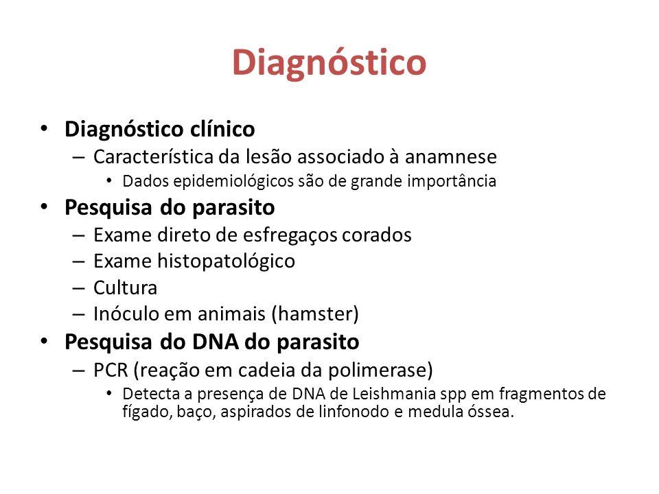 Diagnóstico Diagnóstico clínico Pesquisa do parasito