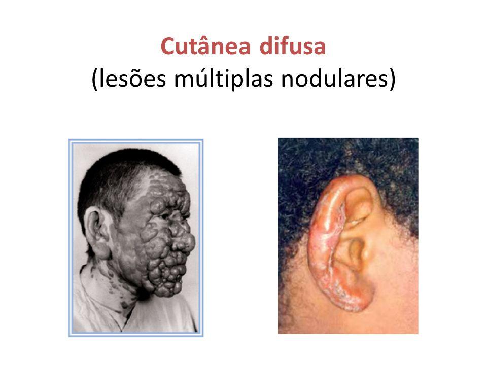 Cutânea difusa (lesões múltiplas nodulares)