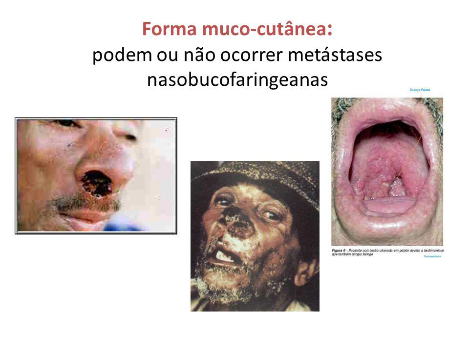 Forma muco-cutânea: podem ou não ocorrer metástases nasobucofaringeanas