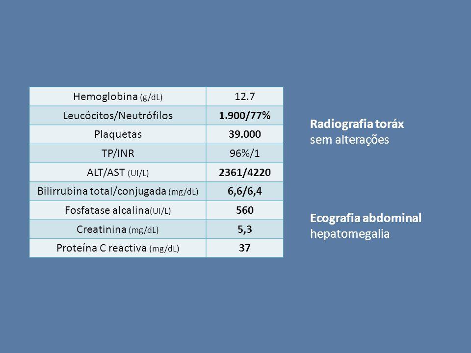 Radiografia toráx sem alterações Ecografia abdominal hepatomegalia
