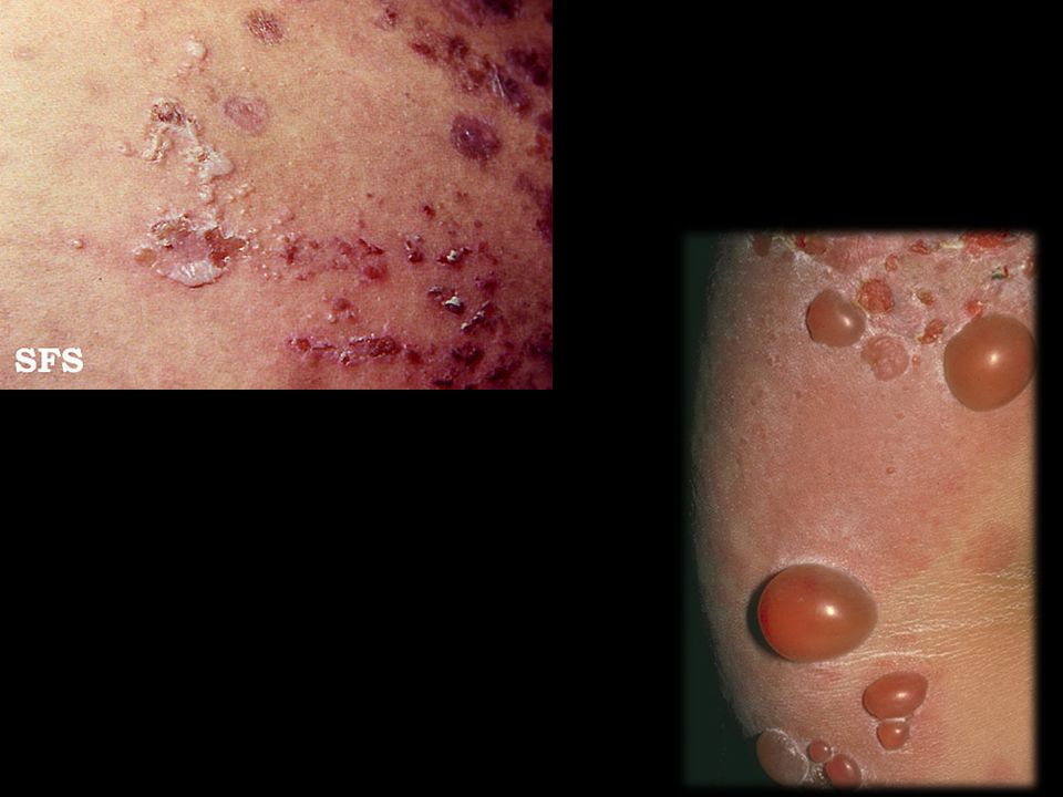 Papulas e placas pruriginosas, eritematosas e urticariformes na região periumbilical. Algumas erosões.