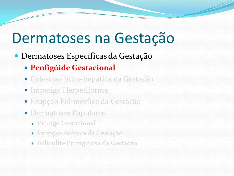 Dermatoses na Gestação
