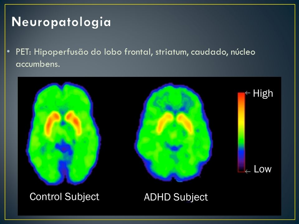 Neuropatologia PET: Hipoperfusão do lobo frontal, striatum, caudado, núcleo accumbens.