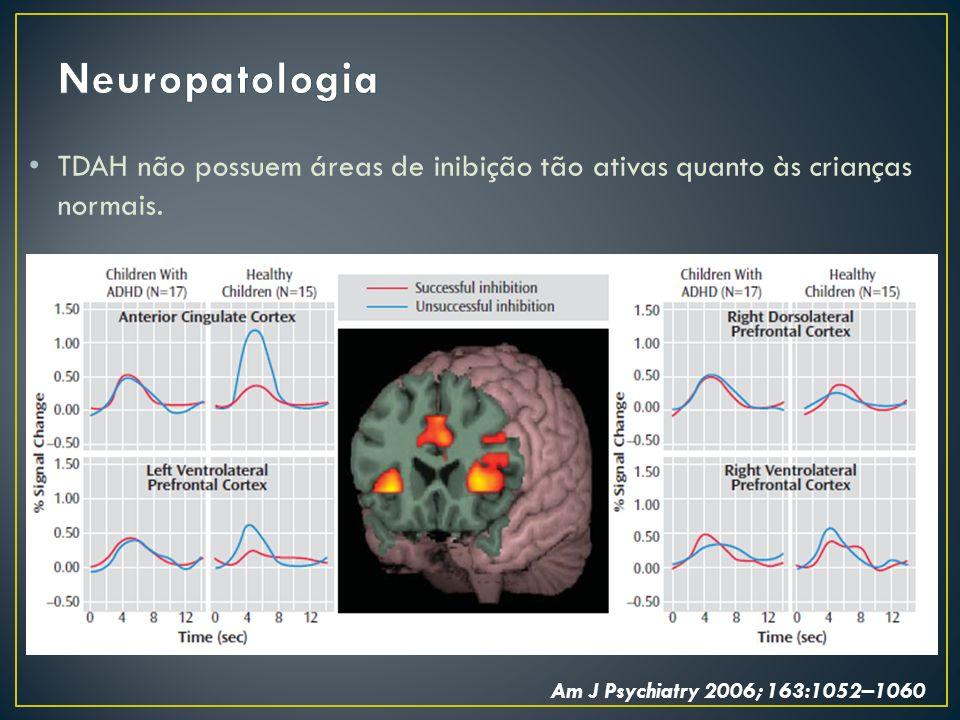 Neuropatologia TDAH não possuem áreas de inibição tão ativas quanto às crianças normais.