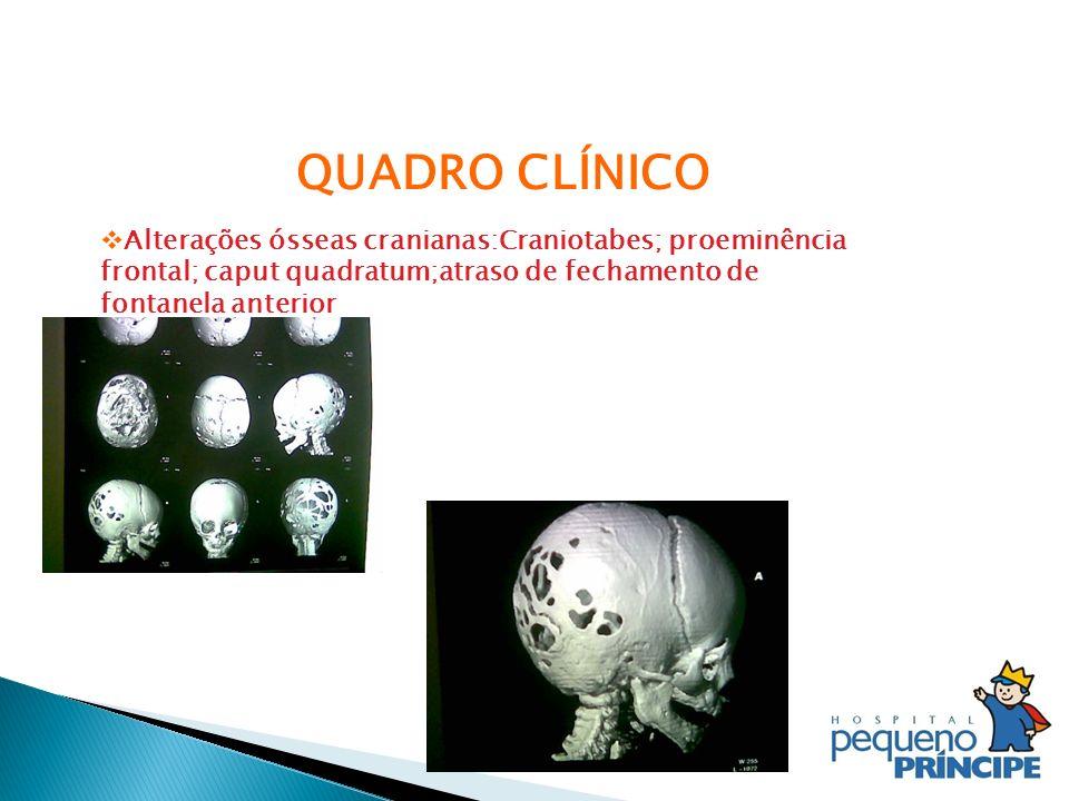 QUADRO CLÍNICO Alterações ósseas cranianas:Craniotabes; proeminência frontal; caput quadratum;atraso de fechamento de fontanela anterior.