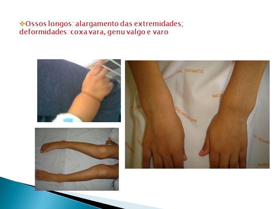 Ossos longos: alargamento das extremidades; deformidades: coxa vara, genu valgo e varo
