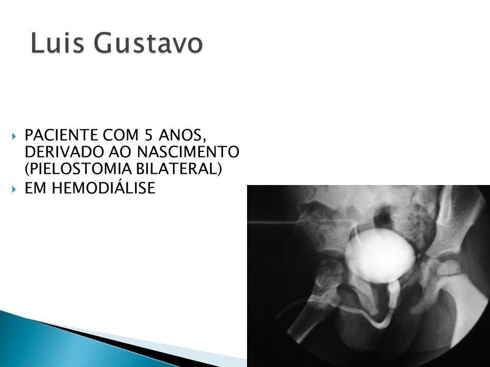 Luis Gustavo PACIENTE COM 5 ANOS, DERIVADO AO NASCIMENTO (PIELOSTOMIA BILATERAL) EM HEMODIÁLISE