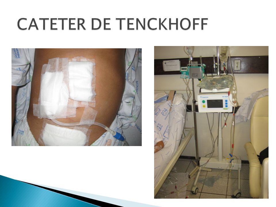 CATETER DE TENCKHOFF