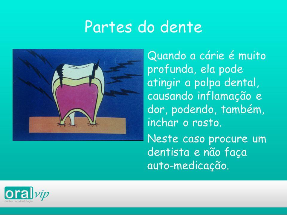 Partes do dente