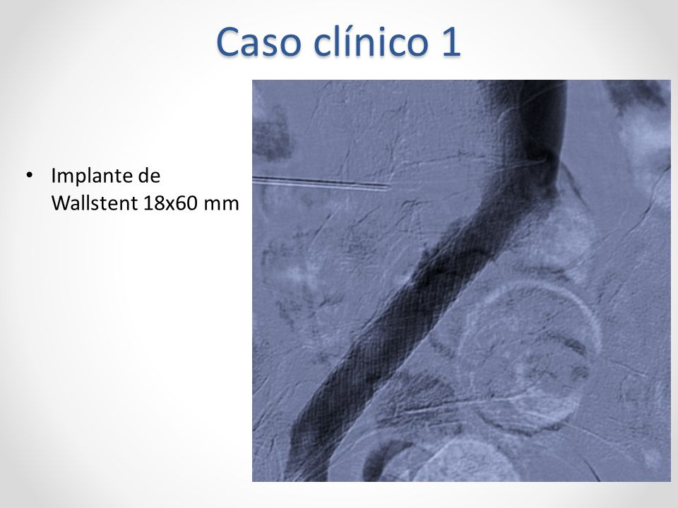 Caso clínico 1 Implante de Wallstent 18x60 mm
