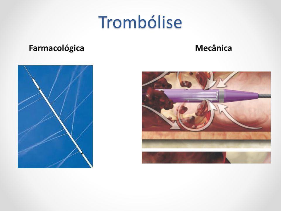 Trombólise Farmacológica Mecânica