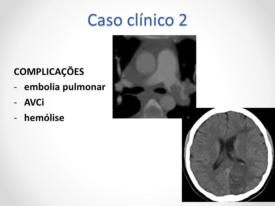 Caso clínico 2 COMPLICAÇÕES embolia pulmonar AVCi hemólise