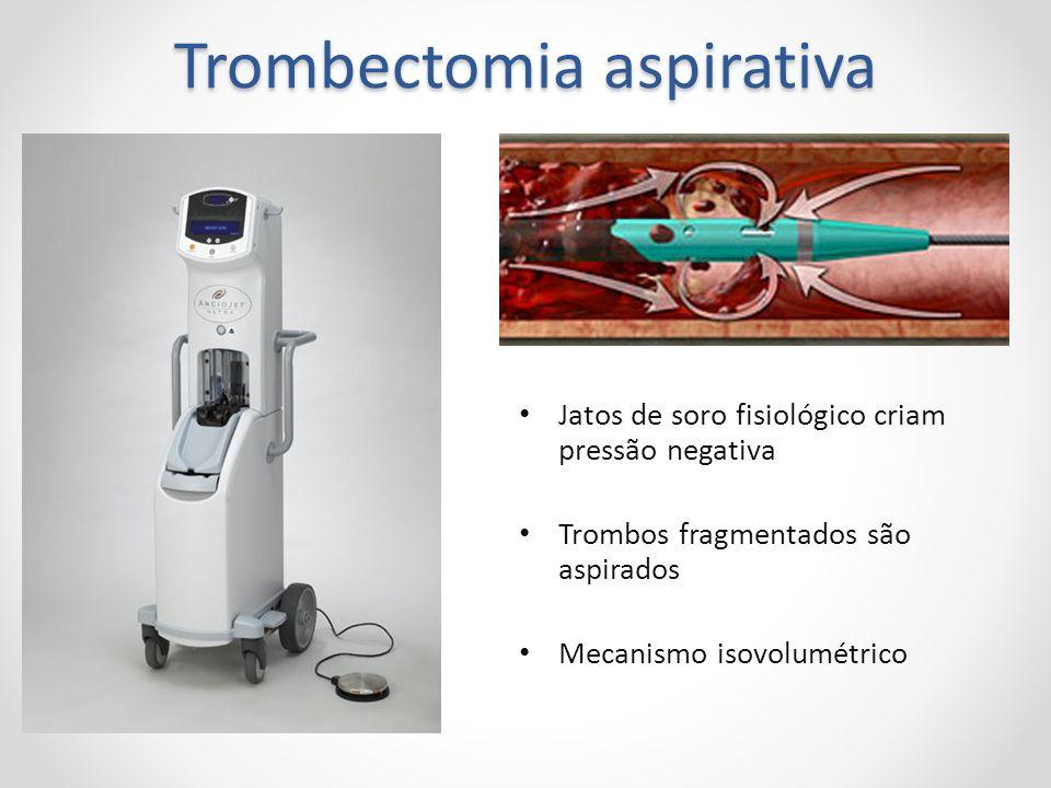 Trombectomia aspirativa