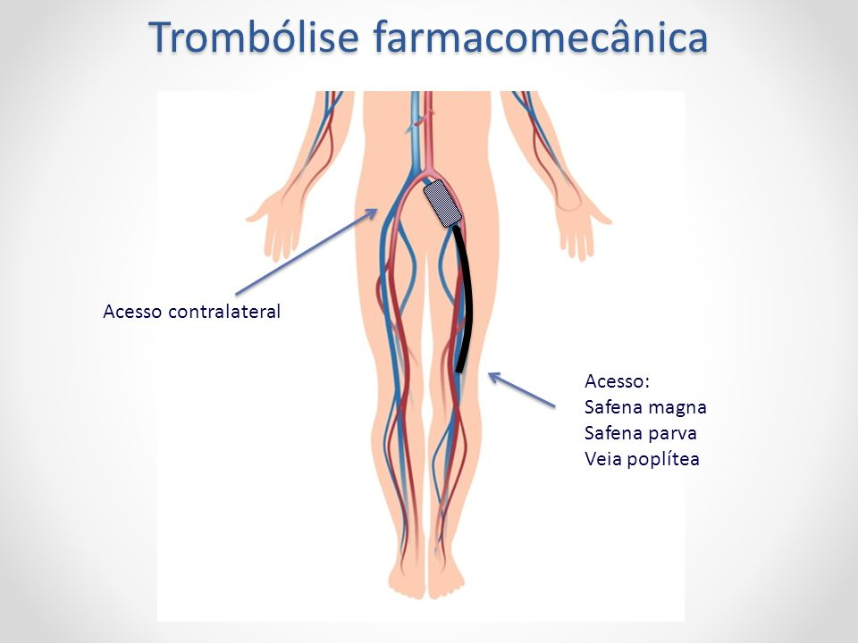 Trombólise farmacomecânica