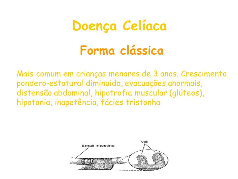 Doença Celíaca Forma clássica