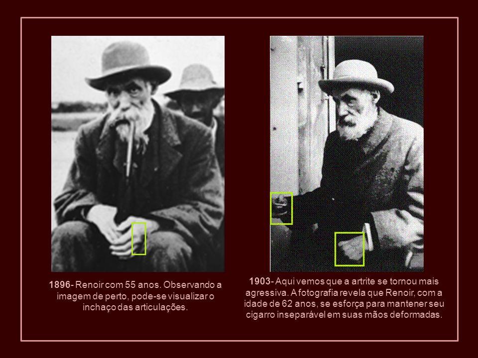 1903- Aqui vemos que a artrite se tornou mais agressiva