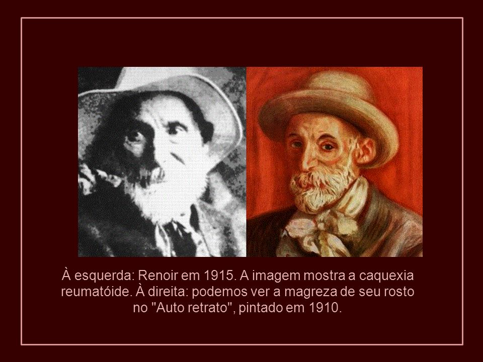 À esquerda: Renoir em 1915. A imagem mostra a caquexia reumatóide