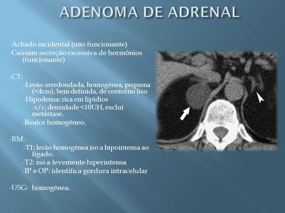 ADENOMA DE ADRENAL -Achado incidental (não funcionante)