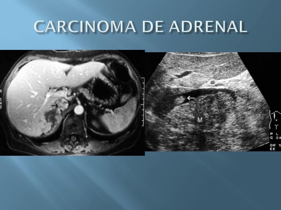 CARCINOMA DE ADRENAL