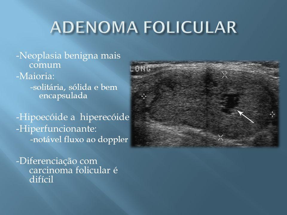 ADENOMA FOLICULAR -Neoplasia benigna mais comum -Maioria: