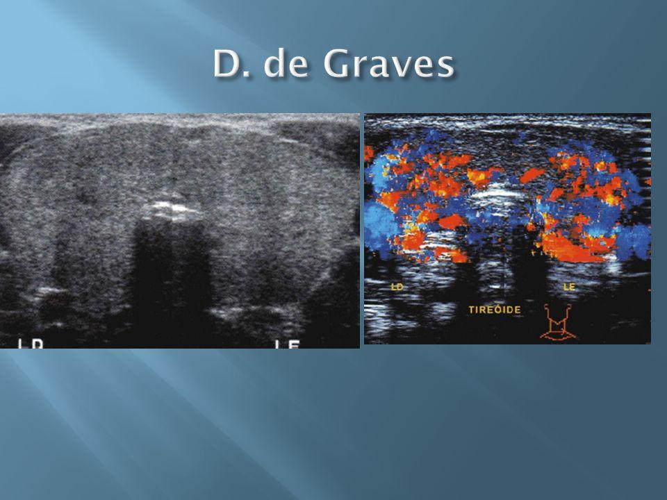 D. de Graves