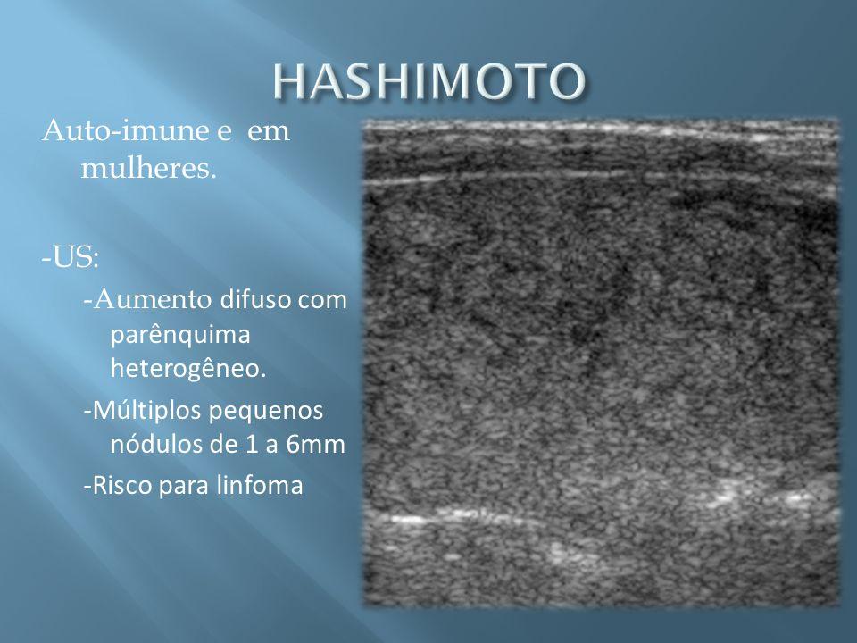 HASHIMOTO Auto-imune e em mulheres. -US:
