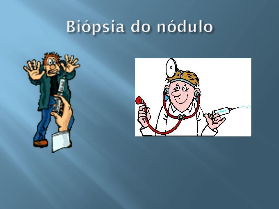Biópsia do nódulo