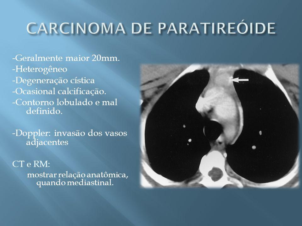 CARCINOMA DE PARATIREÓIDE