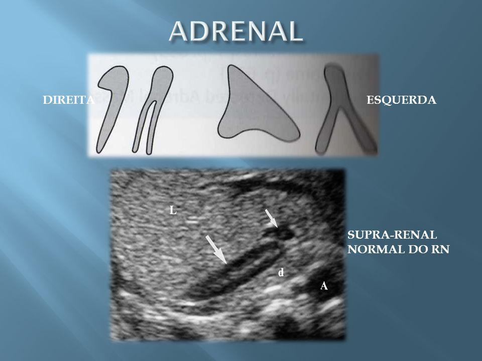 ADRENAL DIREITA ESQUERDA SUPRA-RENAL NORMAL DO RN