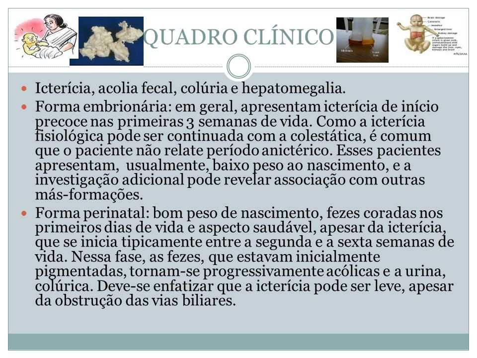 QUADRO CLÍNICO Icterícia, acolia fecal, colúria e hepatomegalia.