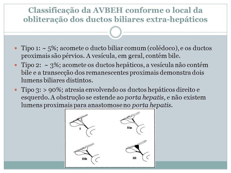 Classificação da AVBEH conforme o local da obliteração dos ductos biliares extra-hepáticos