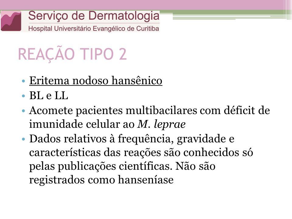 REAÇÃO TIPO 2 Eritema nodoso hansênico BL e LL